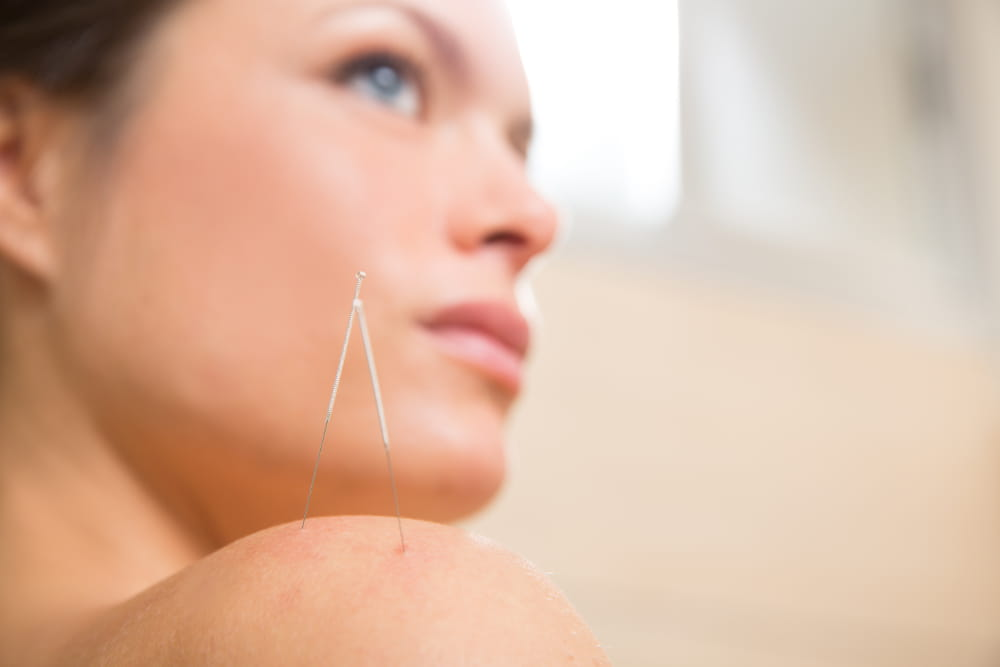 Acupuntura para ansiedade: mulher com agulhas no ombro.