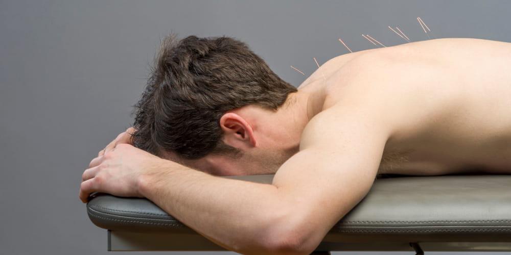 Acupuntura para depressão: homem recebendo tratamento com agulhas.