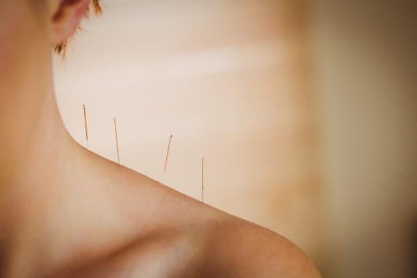 Acupuntura para depressão: mulher recebendo tratamento com agulhas nos ombros.