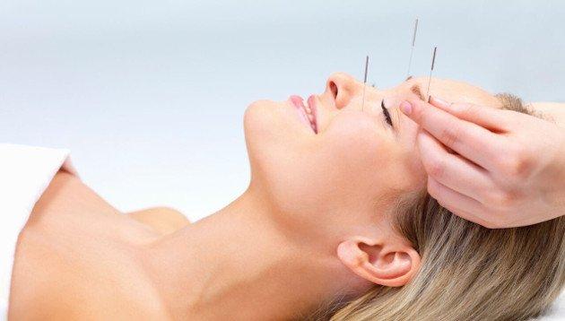 Mulher em uma terapia natural com acupuntura
