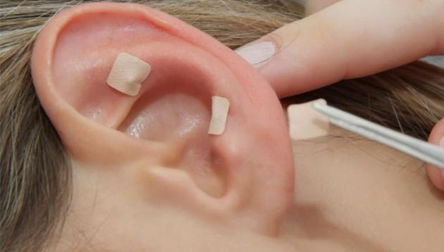 Auriculoterapia - Terapia natural